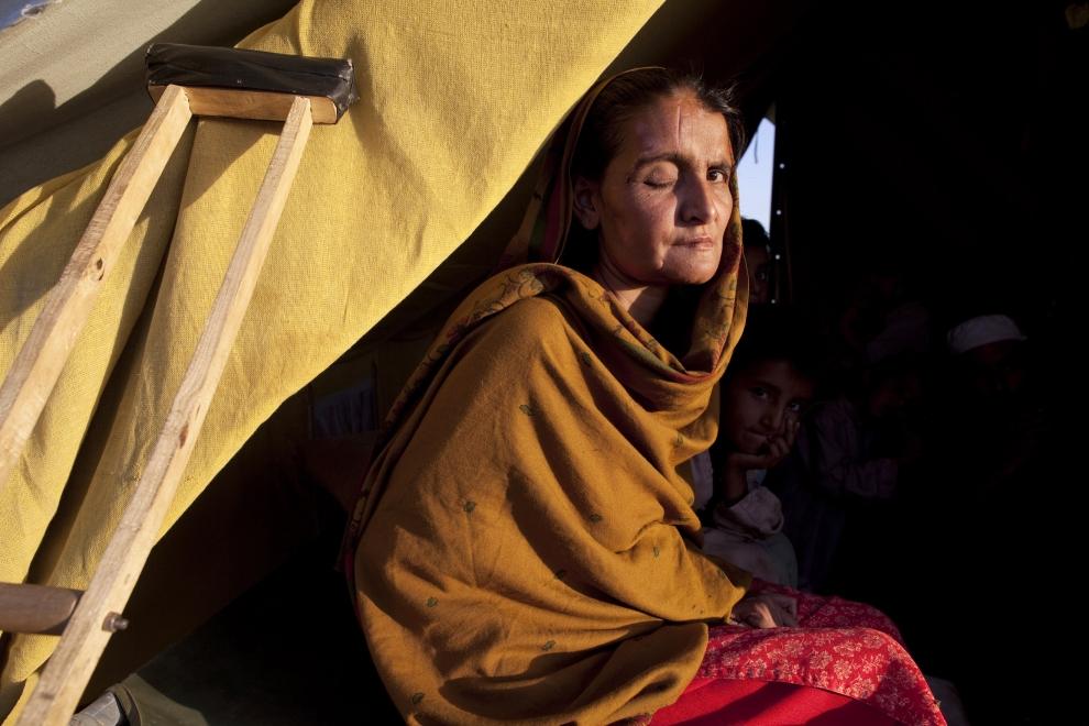 12. PAKISTAN, SWABI: Bakt Shaib straciła oko podczas ostrzału wioski Swat. Przebywa w obozie dla uchodźców Chota Lahore. (Foto: Paula Bronstein /Getty   Images)