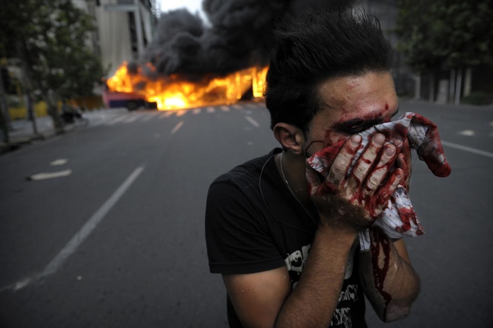 17. IRAN, Teheran, 13 czerwca 2009: Ranny zwolennik Mir Hossein Mousawiego zakrywa krwawiącą twarz. AFP PHOTO/OLIVIER LABAN-MATTEI