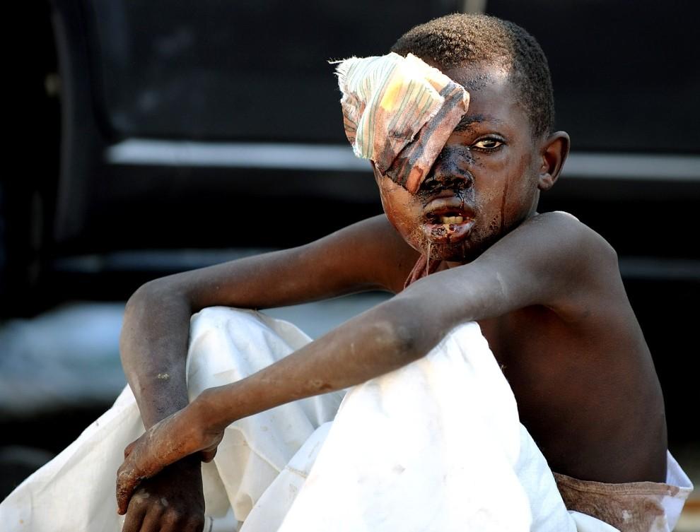 14. HAITI, Port-au-Prince, 14 stycznia 2010: Ciężko ranny chłopiec, który przeżył trzęsienie ziemi, czeka na pomoc medyczną. AFP PHOTO/Juan Barreto