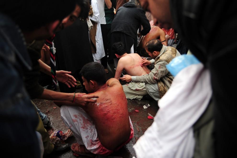 27. PAKISTAN, Rawalpindi , 17 grudnia 2010: Sanitariusze opatrują poranione plecy biczowników. AFP PHOTO/Farooq NAEEM
