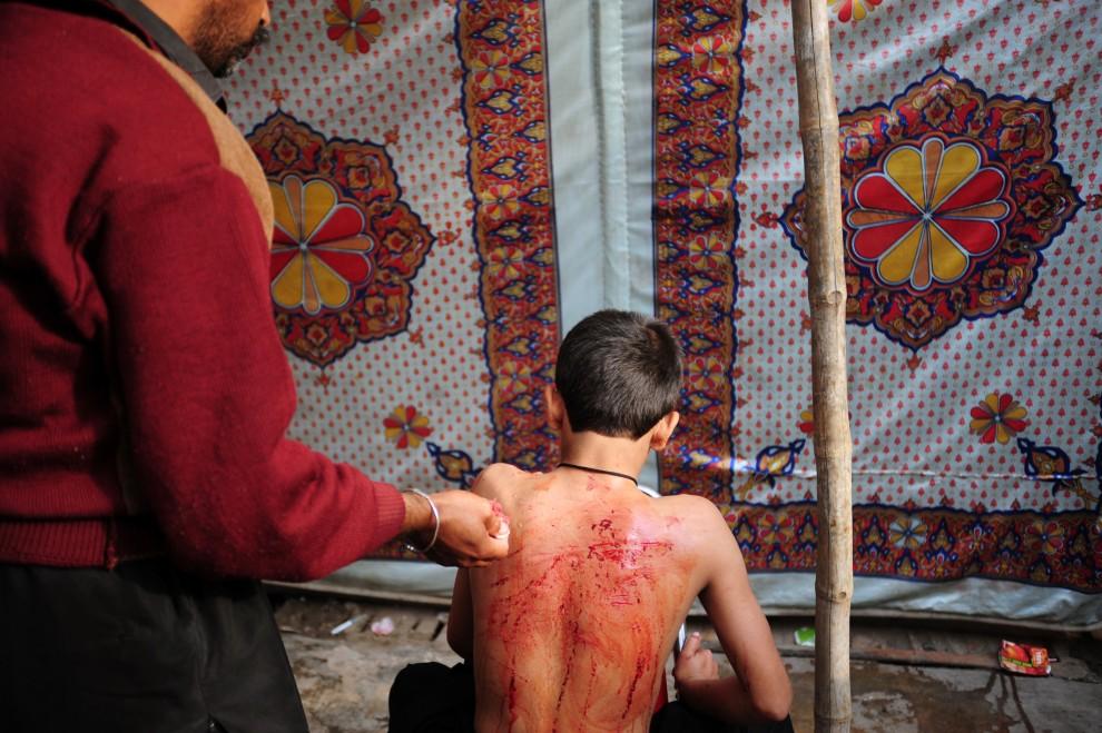 29. PAKISTAN, Rawalpindi , 17 grudnia 2010: Kobieta dezynfekuje rany na plecach chłopca. AFP PHOTO/Farooq NAEEM
