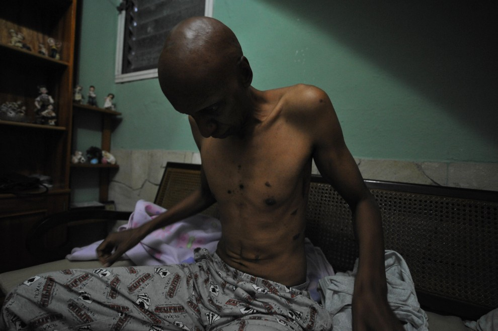 36. KUBA, Hawana, 10 marca 2010: Opozycjonista, Guillermo Farinas, który domoaga się zwolnienia z więzień 26 ciężko chorych opozycjonistów, w trakcie strajku głodowego. AFP PHOTO/ADALBERTO ROQUE