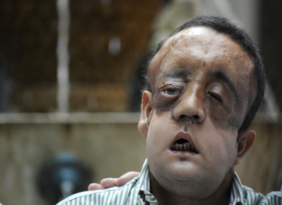 54. HISZPANIA, Sevilla, 4 maja 2010: Mężczyzna, któremu udało przeszczepić się twarz, podczas konferencji prasowej dziękuje rodzinie dawcy. AFP PHOTO / CRISTINA QUICLE