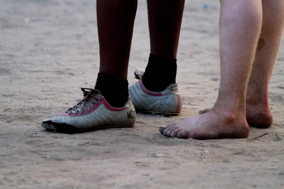 5. TANZANIA, Dar es Salaam, 30 października 2010: Said Seremani (po prawej) zawodnik klubu Tanzania's Albino United, w którym gra kilku tanzańczyków-albinosów. AFP PHOTO/YASUYOSHI CHIBA