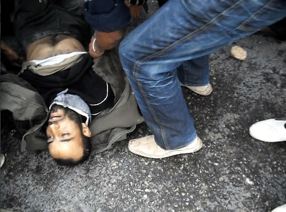 15. TUNEZJA, Regueb, 9 stycznia 2011: Tunezyjczyk ranny w trakcie zamieszek. AFP PHOTO/STR