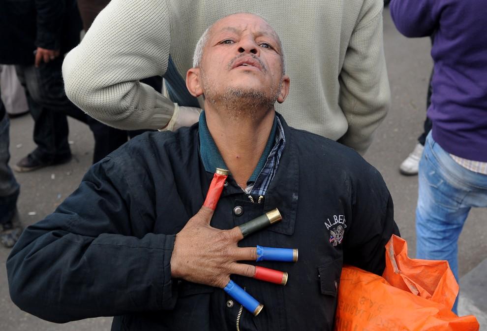 27. EGIPT, Kair, 30 stycznia 2011: Mężczyzna z plastikowymi łuskami po amunicji. AFP PHOTO/MIGUEL MEDINA
