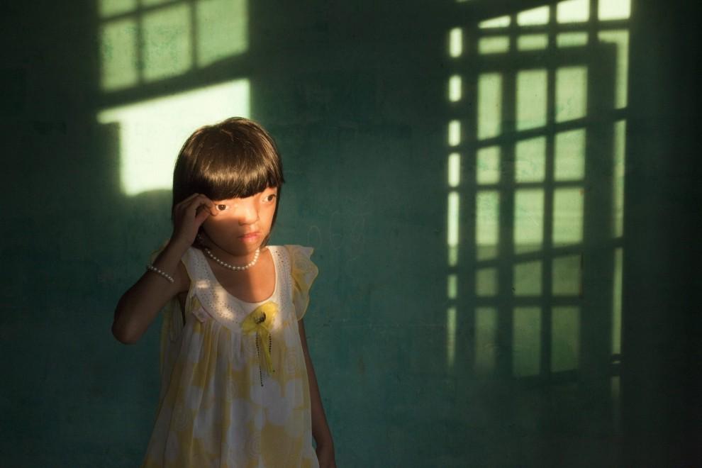 """25.Ed Kashi zdobył II nagrodę w kategorii 'Problemy współczesności - zdjęcie pojedyncze"""" za fotografię przedstawiającą 9-letnią Nguyen Thi Ly ze   zniekształconą - w wyniku działania mieszanki pomarańczowej – twarzą. PAP/EPA."""
