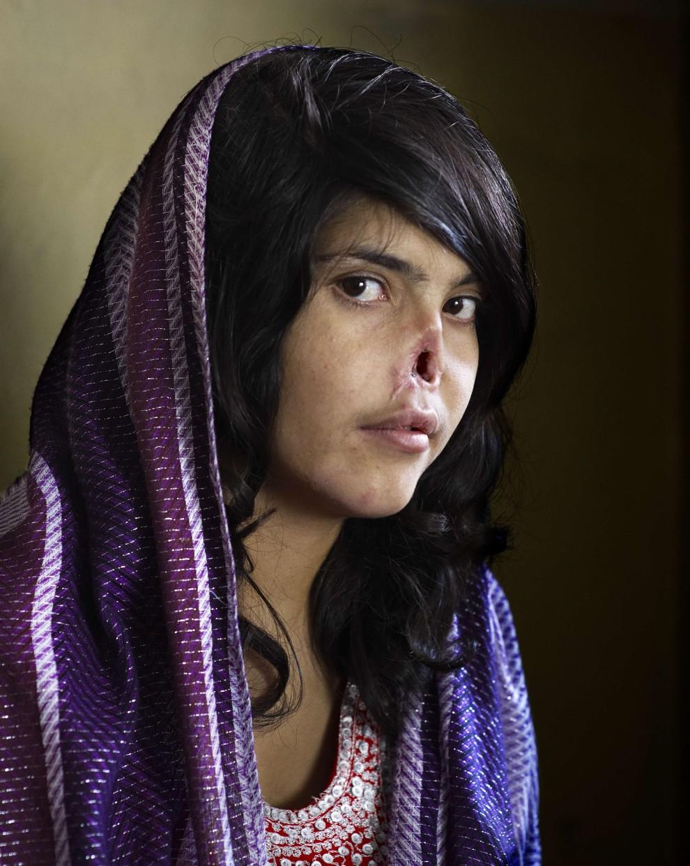 """29.Główną nagrodę World Press Photo otrzymała fotografia Jodi Bieber dla tygodnika """"Time"""" przedstawiająca 18-letnią Afgankę z nosem obciętym przez męża. USA AFP/TIME MAGAZINE JODI BIEBER/sd"""