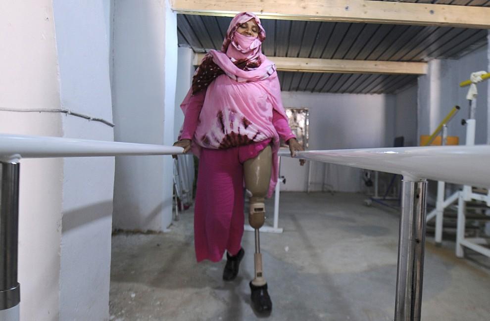 12. ALGIERIA, Tindouf, 1 marca 2011: Ofiara miny lądowej – Fatma Mahmud podczas rehabilitacji. AFP PHOTO/ DOMINIQUE FAGET