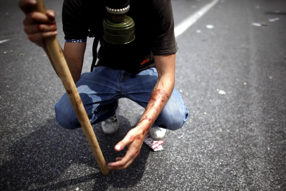 15. GRECJA, Ateny, 15 czerwca 2011: Mężczyzna ranny w trakcie zamieszek. AFP PHOTO / Angelos Tzortzinis