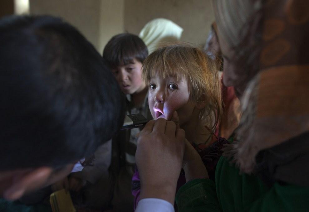 18. AFGANISTAN, Faladi, 11 czerwca 2011: Lekarz z mobilnej przychodni ogląda gardło dziecka. (Foto: Paula Bronstein/Getty Images)