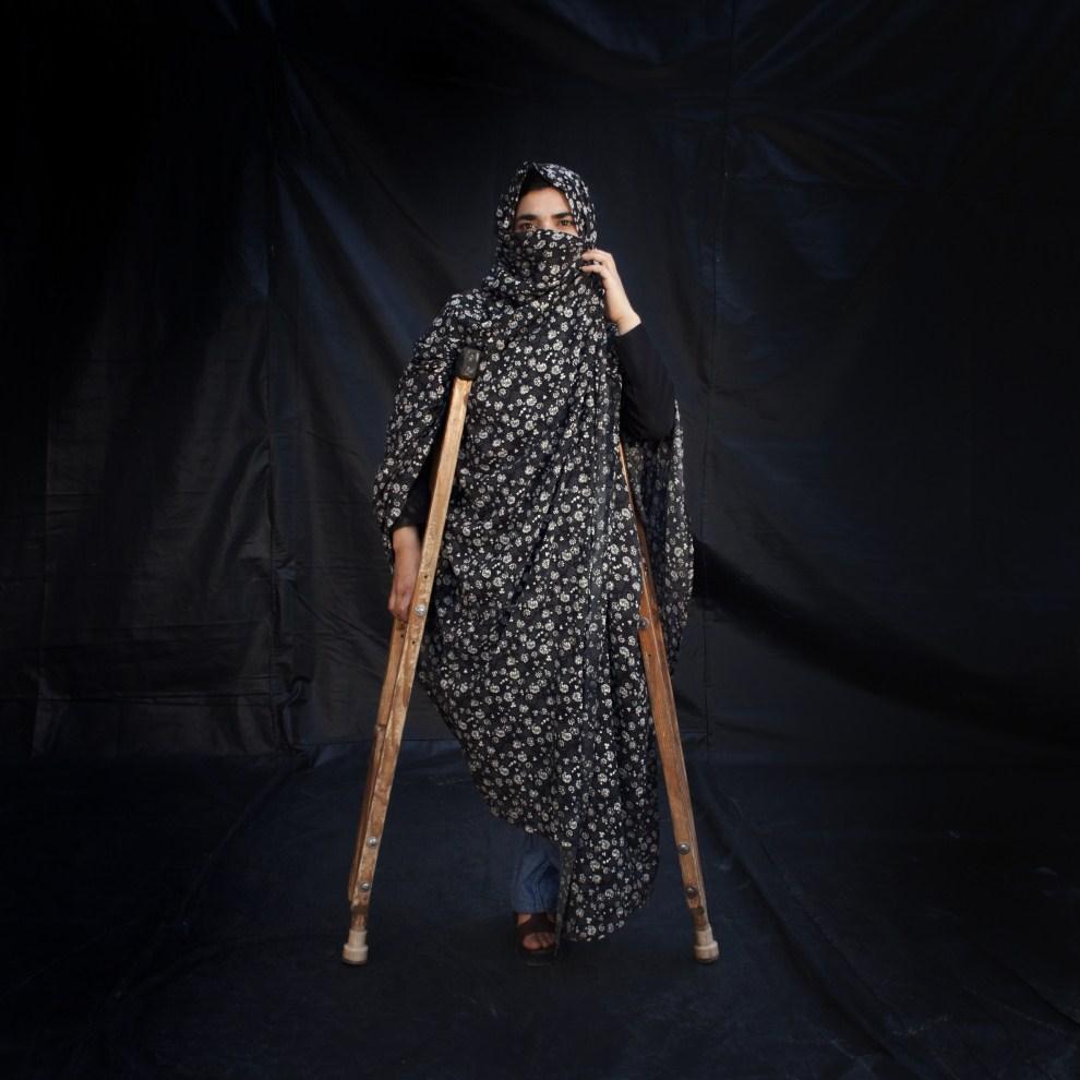 28. AFGANISTAN, Herat,  grudzień 2010: Trzydziestoletnia Farahnaz straciła nogę po wejściu na minę. (Foto: Majid Saeedi/Getty Images)