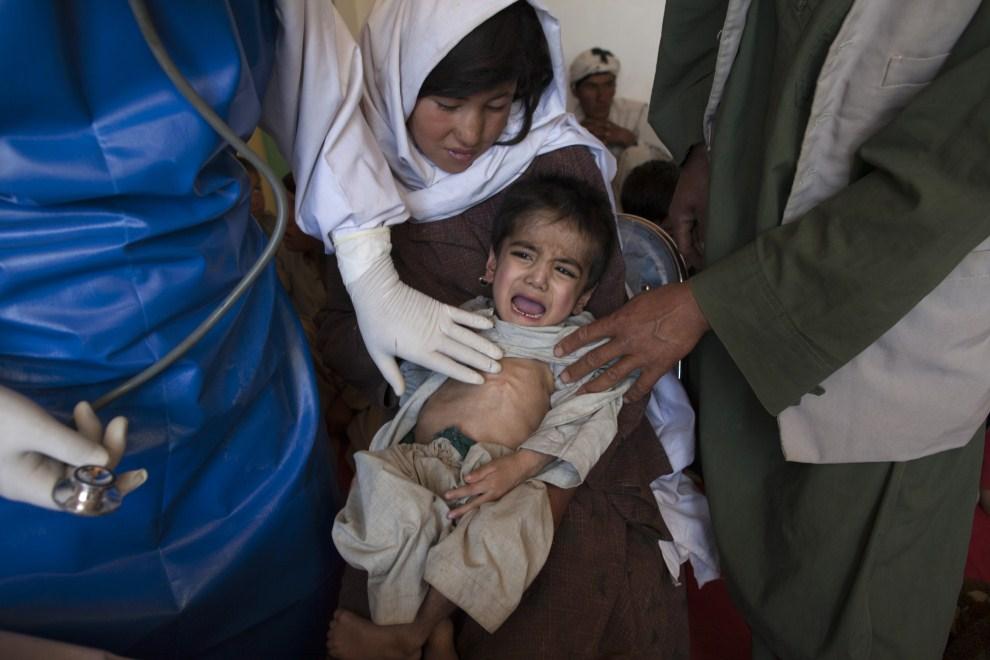 7. AFGANISTAN, Raquol, 9 czerwca 2011: Lekarz bada dziecko cierpiące z powodu niedożywienia. (Foto: Paula Bronstein/Getty Images)