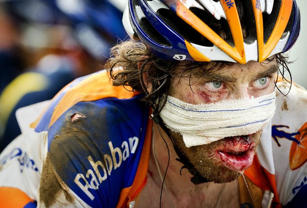 29. FRANCJA, Les Cabannes, 16 lipca 2011: Holender Laurens ten Dam po wypadku na trasie Tour de France. AFP PHOTO / KOEN VAN WEEL