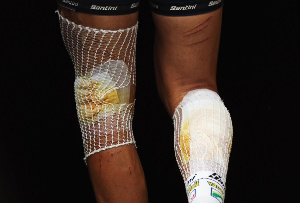33. FRANCJA, Carmaux, 12 lipca 2011: Johnny Hoogerland z opatrunkami na nogach po upadku podczas wyścigu. (Foto: Bryn Lennon/Getty Images)