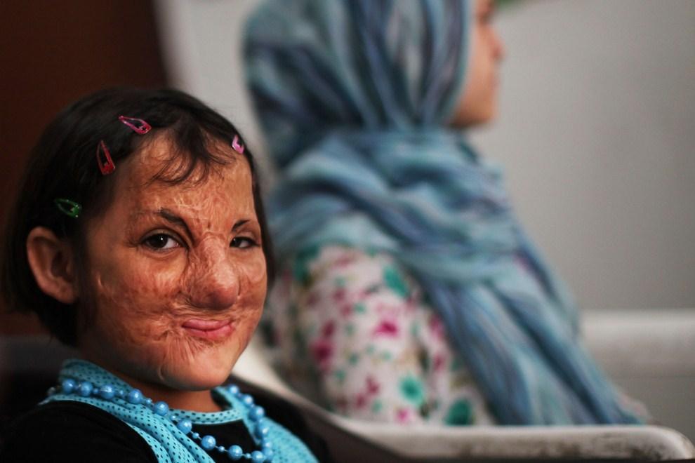 6. JORDANIA, Amman, 28 lipca 2011: Pochodząca z Iraku Sonor Darweesh (siedem lat) uczestniczy w spotkaniu grupy dla ofiar przemocy. Dziewczynka została ranna podczas   eksplozji, która zabiła jej przyjaciółkę. (Foto: Spencer Platt/Getty Images)
