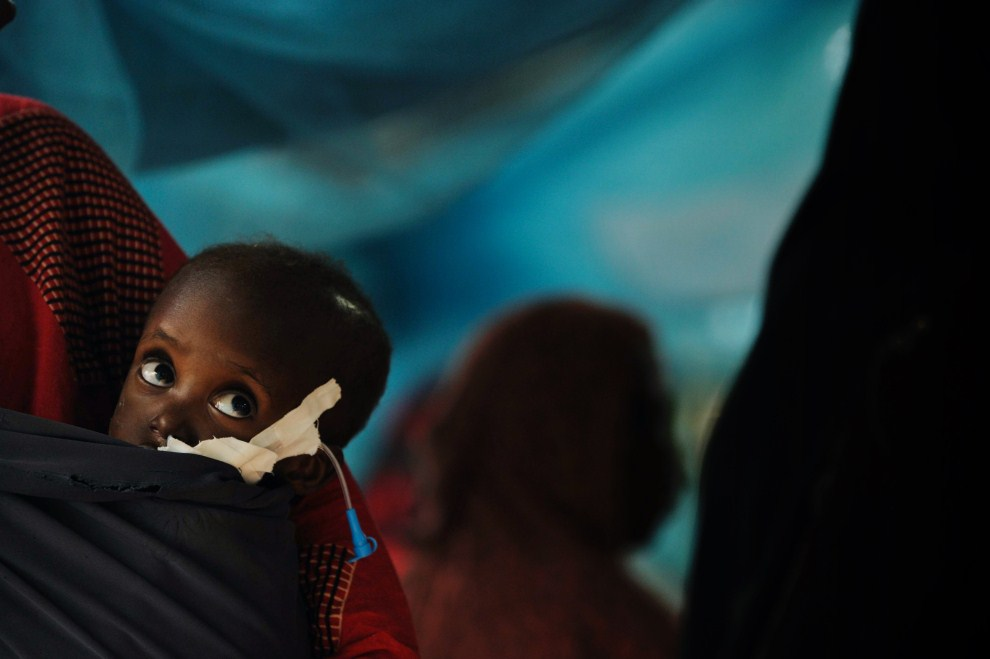 1st KENYA, Dadaab, Dadaab, 4 July 2011: Two-year Shiniyo mother on his back in a clinic run by Doctors Without Borders. AFP PHOTO / Roberto SCHMIDT