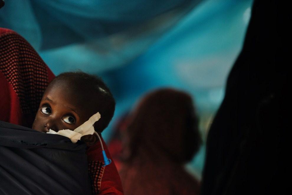1. KENIA, Dadaab, Dadaab, 4 lipca 2011: Dwuletnia Shiniyo na plecach matki w klinice prowadzonej przez Lekarzy bez Granic. AFP PHOTO/Roberto SCHMIDT