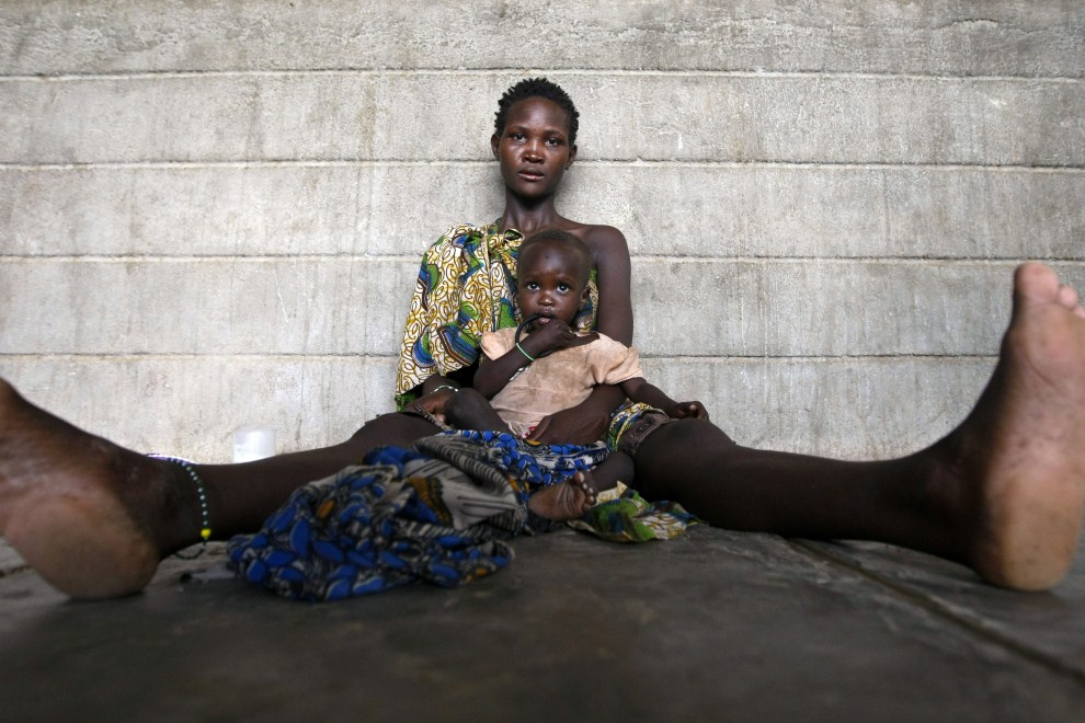 23rd KENYA, Turkana, 12 August 2011: Mother and child in the city hospital. EPA / DAI Kurokawa Supplier: PAP / EPA.