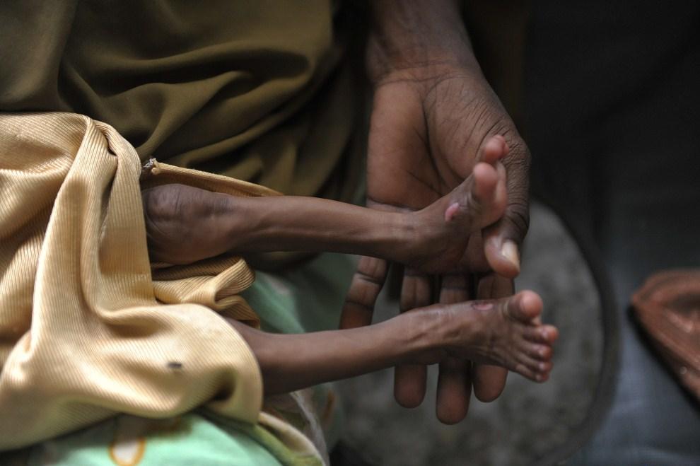 24. SOMALIA, Mogadiszu, 13 sierpnia 2011: Chory chłopiec na kolanach matki. AFP PHOTO / SIMON MAINA