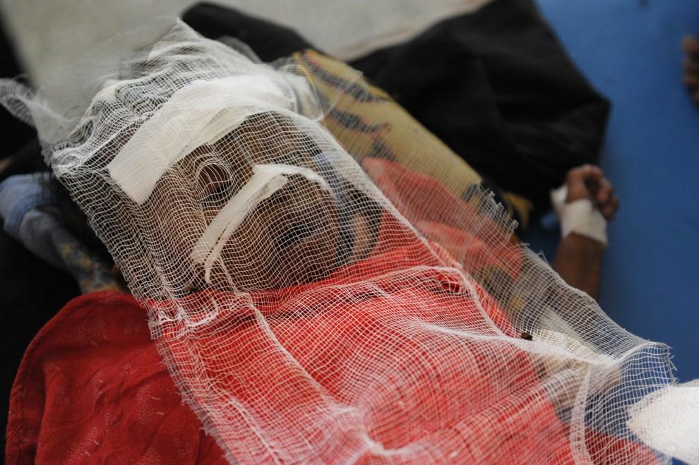 26. SOMALIA, Mogadiszu, 16 sierpnia 2011: Przebywająca w szpitalu czteromiesięczna Hamsa śpi osłonięta gazą przed muchami. AFP PHOTO/ROBERTO SCHMIDT