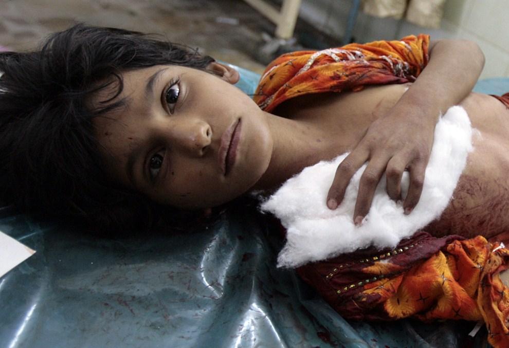 19. IRAK, Bagdad, 9 lipca 2006: Ranna dziewczynka czeka na przybycie lekarza. AFP PHOTO/AHMAD AL-RUBAYE