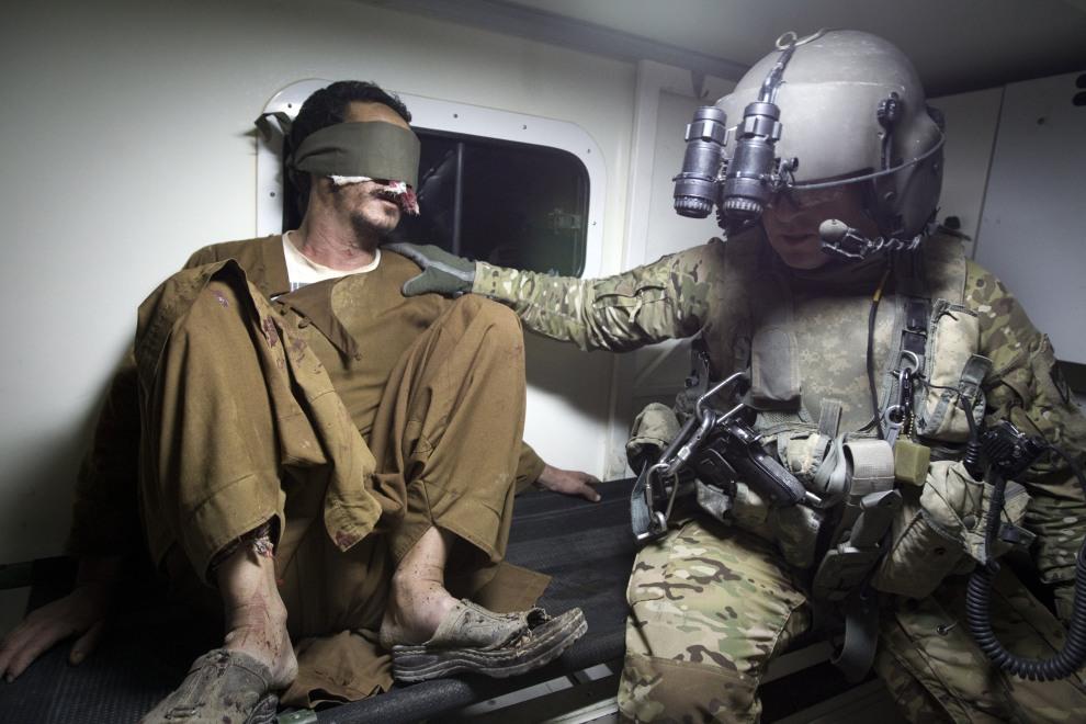 24.AFGANISTAN, Kandahar, 17 października 2011: Transport rannego cywila do szpitala w Kandaharze. AFP PHOTO/ BEHROUZ MEHRI