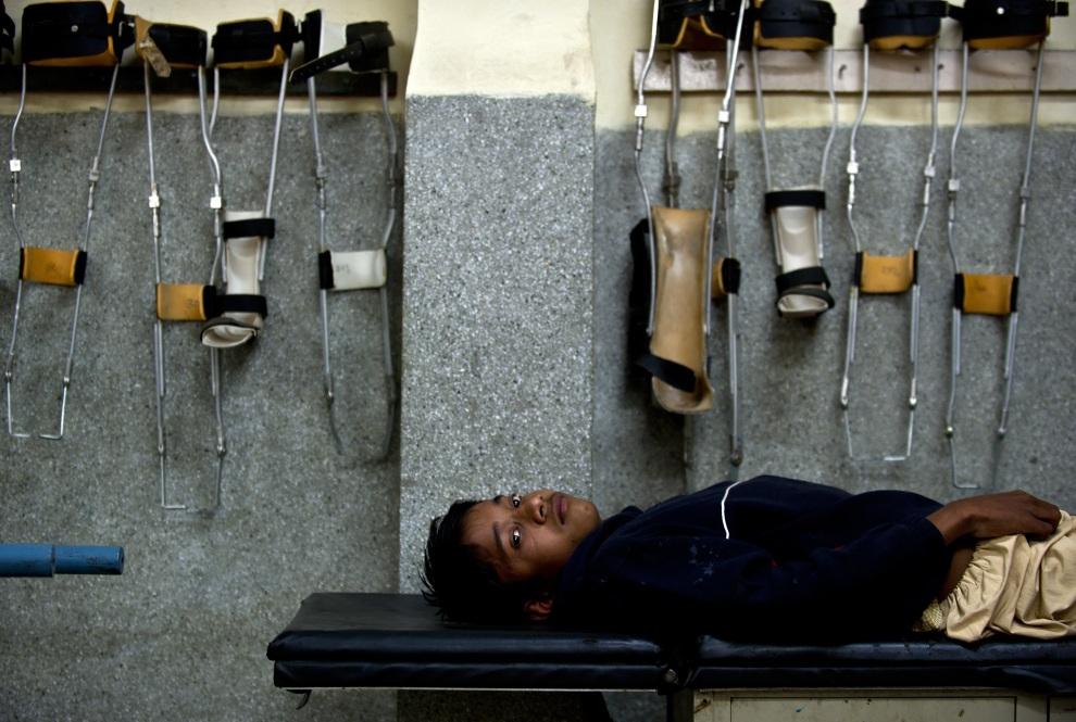 15.INDIE, New Delhi, 13 stycznia 2012: Chłopak chory na Polio na łóżku oddziału ortopedycznego szpitala w New. AFP PHOTO/ Manan VATSYAYANA