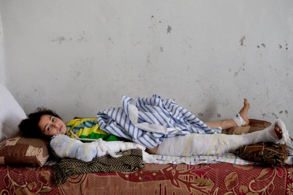 10.SYRIA, Maarat Al-Numan, 6 lipca 2012: Dziewczynka ranna fragmentem skały oderwanej przez pocisk artyleryjski. AFP/LO