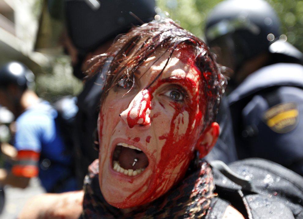 21.HISZPANIA, Madryt, 11 lipca 2012: Kobieta ranna w czasie starcia policji z protestującymi górnikami. AFP PHOTO / CESAR MANSO