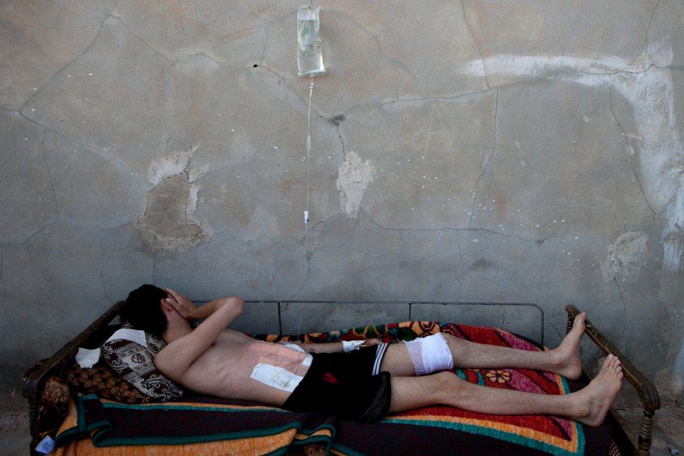 29.SYRIA, Kfar Sajana, 8 lipca 2012: Mężczyzna ranny w trakcie walk. AFP PHOTO/LO