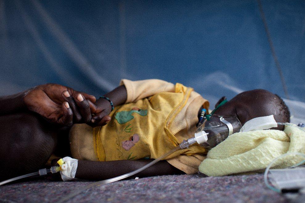 16.SUDAN POŁUDNIOWY, Doro, 2 sierpnia 2012: Lastman Muthko (2 lata) chory na malarię. AFP PHOTO / MSF / Nichole Sobecki