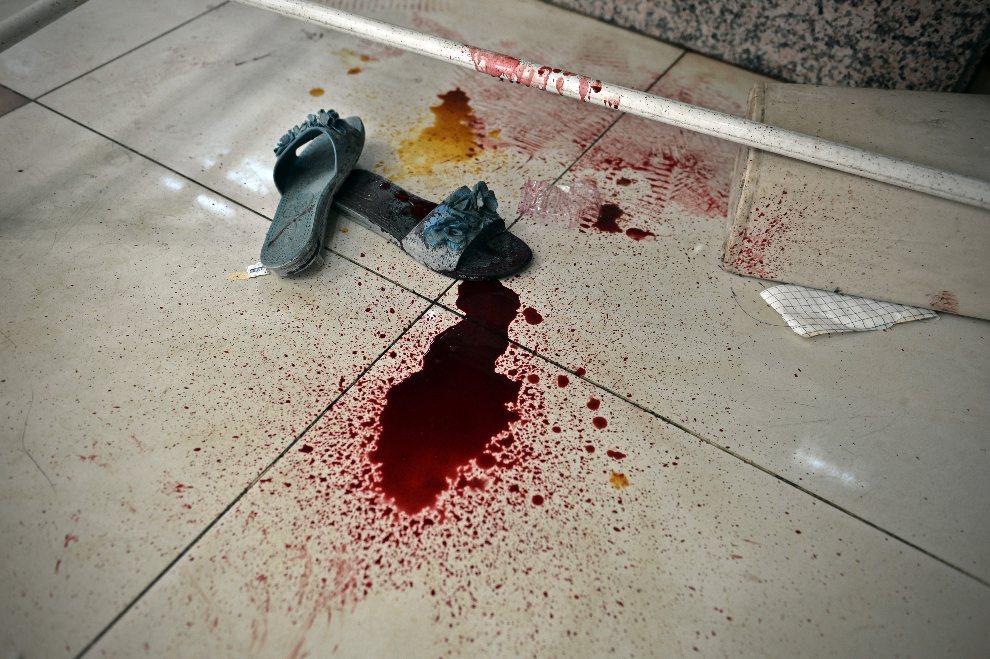 2.SYRIA, Aleppo, 28 sierpnia 2012: Zakrwawiona podłoga w szpitalu w Aleppo.  AFP PHOTO / ARIS MESSINIS