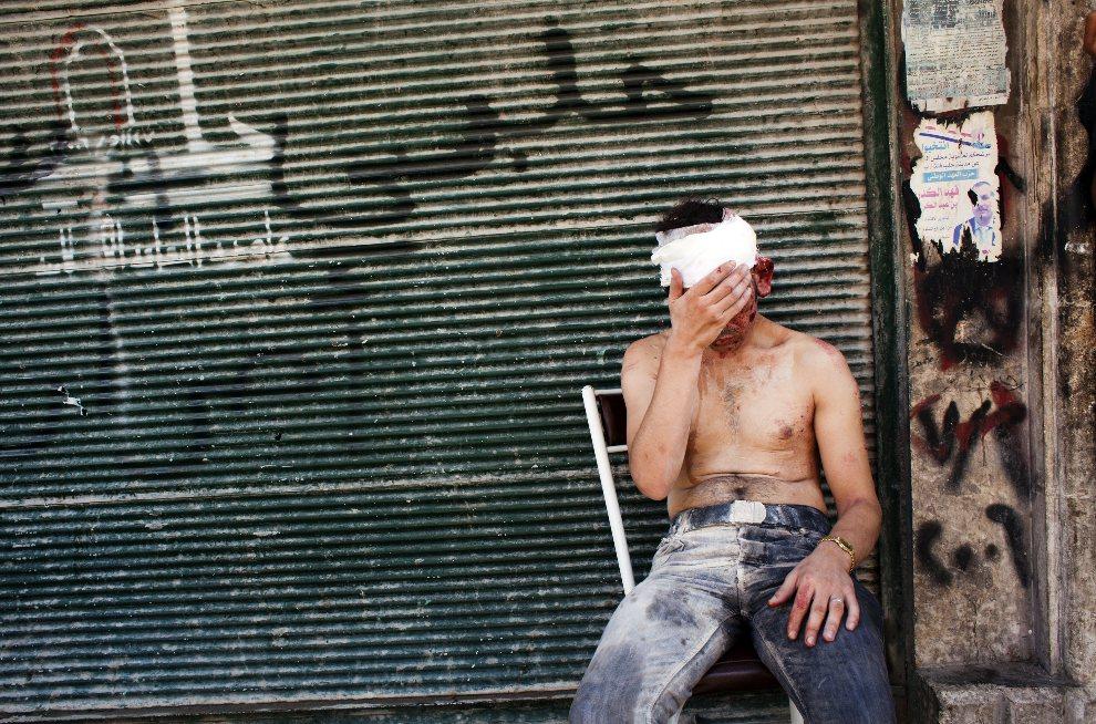 21.SYRIA, Aleppo, 4 września 2012: Mężczyzna ranny podczas ostrzału Aleppo. AFP PHOTO/ACHILLEAS ZAVALLIS