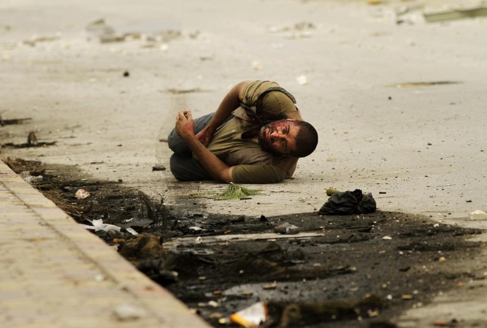 23.SYRIA, Aleppo, 20 października 2012: Ranny mężczyzna trafiony powtórnie przez snajpera. AFP PHOTO/JAVIER MANZANO