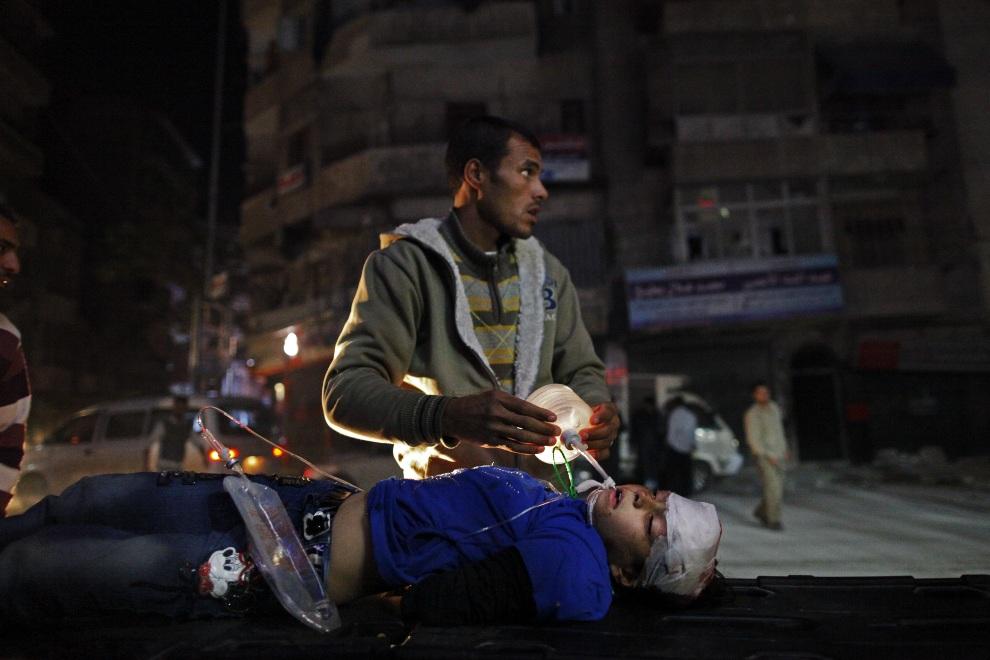 5.SYRIA, Aleppo, 31 października 2012: Członek rodziny reanimuje ranną dziewczynkę. AFP PHOTO/JAVIER MANZANO