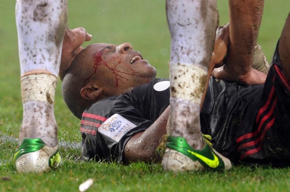 30.FRANCJA, Brest, 2 grudnia 2012: Andre Ayew kontuzjowany w meczu między zespołami z Brest i Marsylii.. AFP PHOTO / FRED TANNEAU