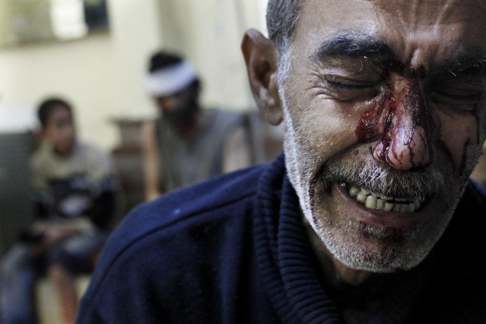 6.SYRIA, Aleppo, 31 października 2013: Kamal, ojciec śmiertelnie rannej dziewczynki, w szpitalu kontrolowanym przez rebeliantów. AFP PHOTO/JAVIER MANZANO