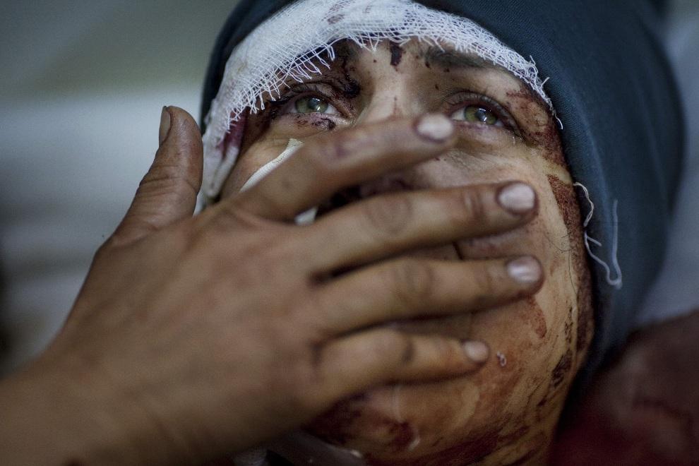 """7.SYRIA, Idlib, 10 marca 2012: Pierwsze miejsce w kategorii """"News"""".  Kobieta hospitalizowana po tym, jak jej dom został zniszczony podczas ostrzału prowadzonego   przez wojska rządowe. AFP PHOTO/ AP / Rodrigo Abd"""