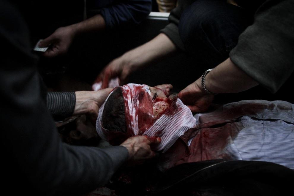8.SYRIA, Aleppo, 3 grudnia 2012: Mężczyzna ranny w trakcie ostrzału moździerzowego. AFP PHOTO/JAVIER MANZANO