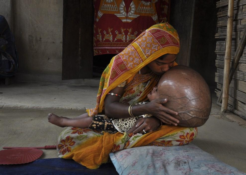 13.INDIE, Jirania, 13 kwietnia 2013: Fatima Khatun (25 lat) całuje zwoją osiemnastomiesięczną córkę chorującą na wodogłowie. AFP PHOTO/ STR