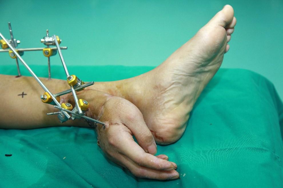 11.CHINY, Changsha, 14 grudnia 2013: Dłoń mężczyzny przyszyta do jego nogi w oczekiwaniu na kolejny etap transplantacji dłoni. AFP PHOTO
