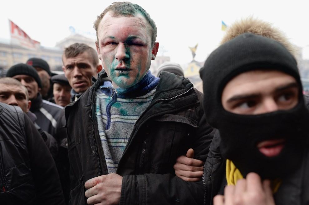15.UKRAINA, Kijów, 23 lutego 2014: Pobity zwolennik usuniętej władzy. (Foto: Jeff J Mitchell/Getty Images)