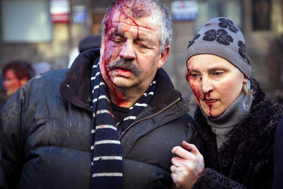 16.0 UKRAINA, Kijów, 18 lutego 2014: Ludzie ranni w trakcie walk z milicją. AFP PHOTO/ OLEKSANDR RATUSHNIAK