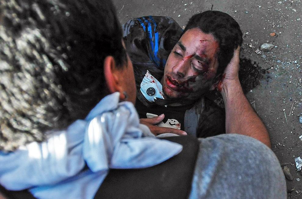 18.WENEZUELA, Caracas, 12 lutego 2014: Student Bassil DaCosta ranny w trakcie zamieszek. DaCosta zmarł w wyniku odniesionych obrażeń. AFP PHOTO / Manaure Quintero