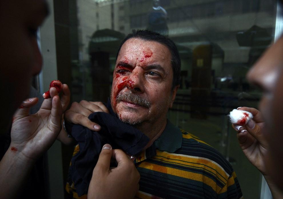 19.WENEZUELA, Caracas, 12 lutego 2014: Mężczyzna ranny w trakcie starć z policją. AFP PHOTO / JUAN BARRETO