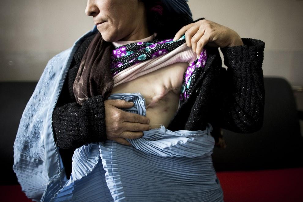 10.AFGANISTAN, Herat, 2 kwietnia 2014: Kobieta po zabiegu mastektomii. AFP PHOTO/BEHROUZ MEHRI