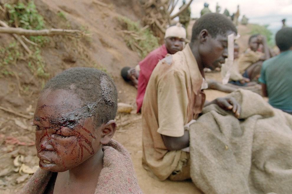 20.RWANDA, Kibeho, 24 kwietnia 1995: Ranni uciekinierzy przebywający w obozie dla uchodźców. AFP
