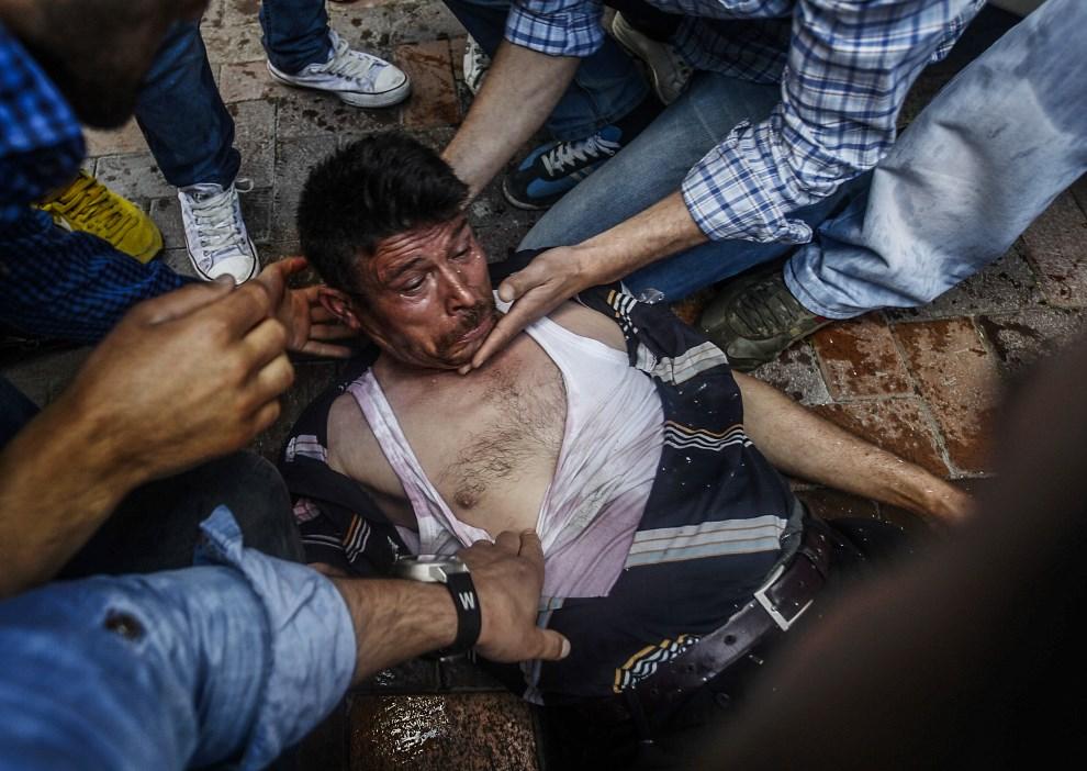 7.TURCJA, Soma, 16 maja 2014: Mężczyzna raniony gumową kulą podczas starć z policją. AFP PHOTO / BULENT KILIC