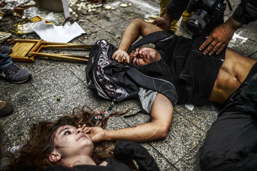 10.TURCJA, Stambuł, 31 maja 2014: Ludzie ranni w trakcie zamieszek w rocznicę wydarzeń w parku Gezi. AFP PHOTO / BULENT KILIC